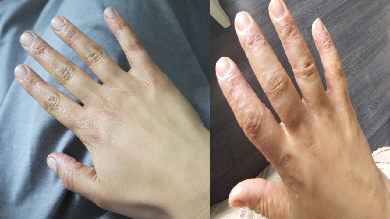 eczema before after picture