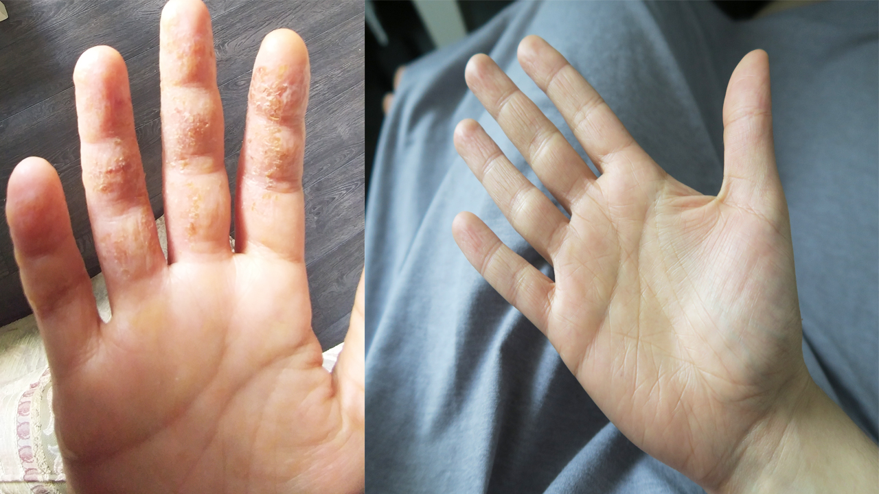 Eczema hand before after picture