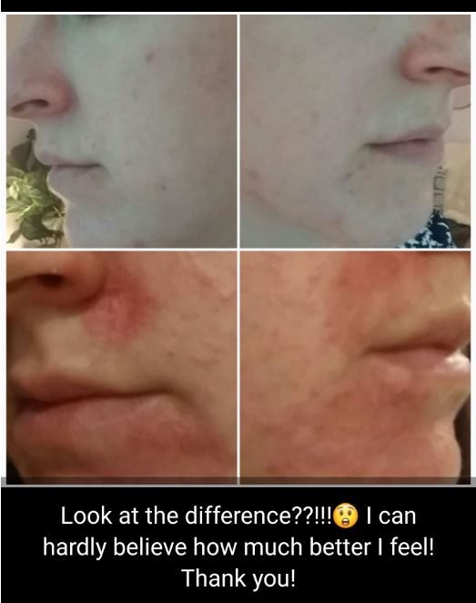 eczema-before-and-after